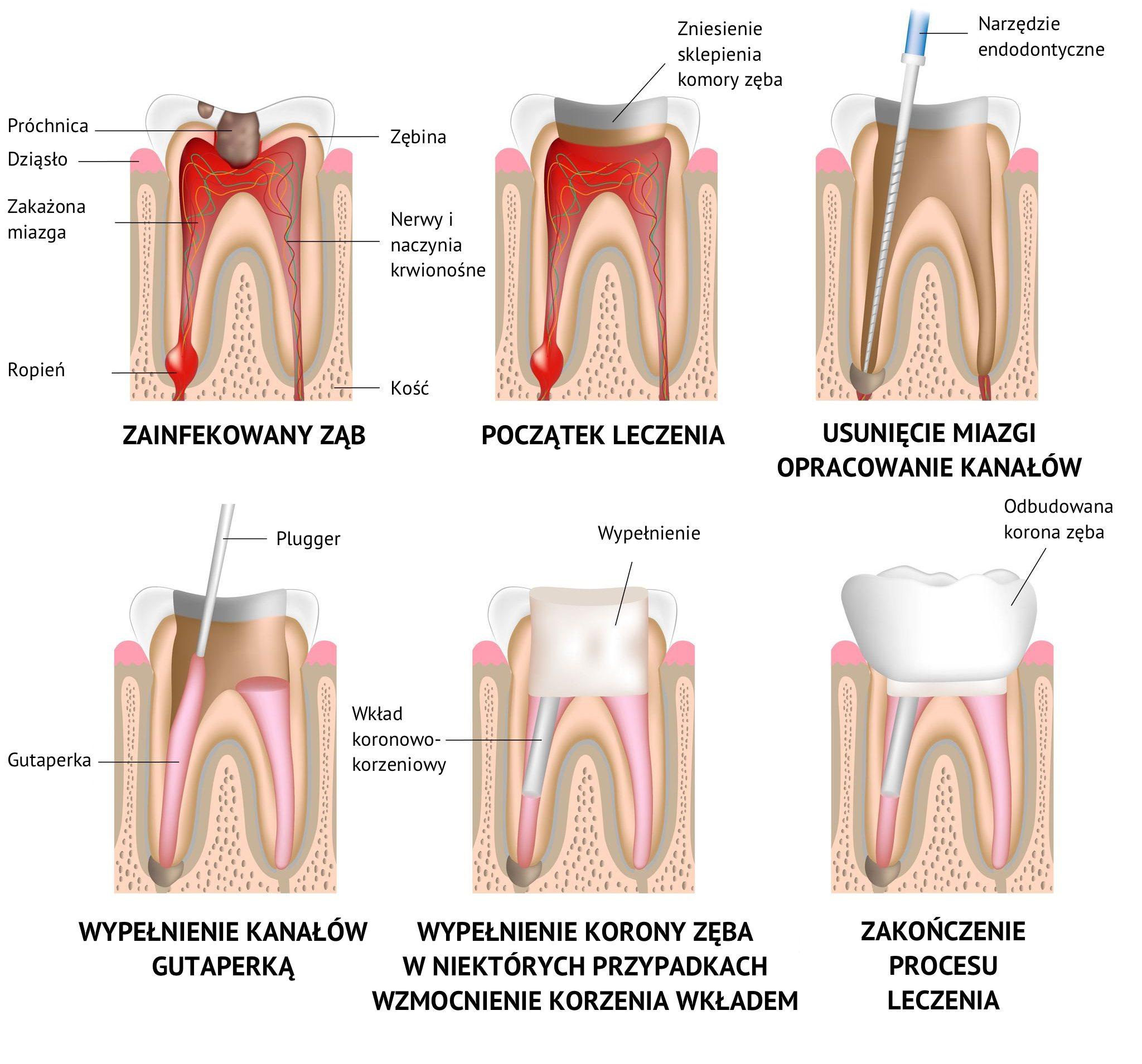 leczenie kanałowe, leczenie próchnicy zębów, leczenie stomatologiczne