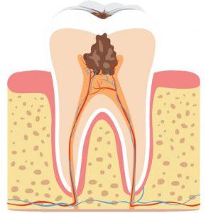 próchnica zęba, zapalenie miazgi