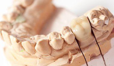 brak jednego zęba