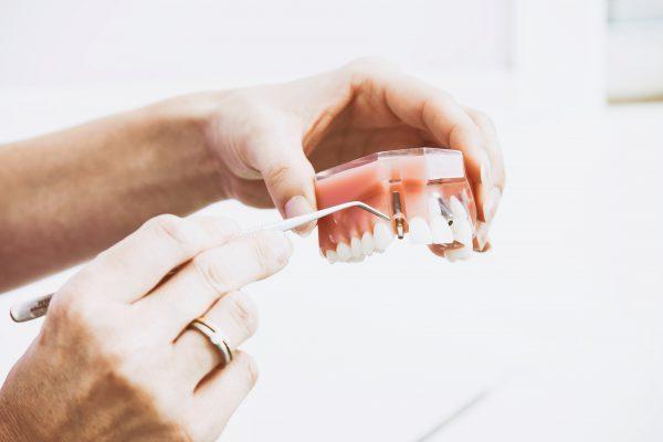 braki zębowe stomatolog Opole dentysta